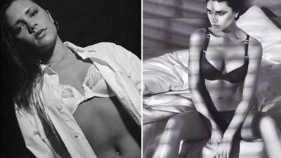 Os famosos antes e depois do bisturi