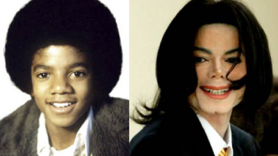 Berömd opererad: före och efter
