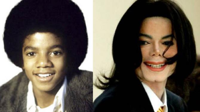 Famosos operados: antes y después