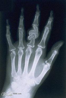 Visão radiológica